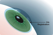 how does laser eye surgery work